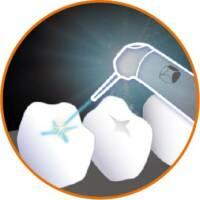 雷射治療應用-兒童牙科-台北牙醫-悅庭牙醫