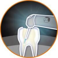雷射治療應用-根管治療-台北牙醫-悅庭牙醫