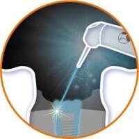 雷射治療應用-植牙-台北牙醫-悅庭牙醫