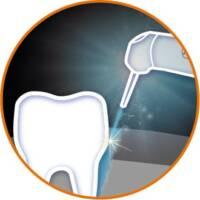 雷射治療應用-牙周病-台北牙醫-悅庭牙醫