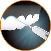 雷射治療應用-美學牙科-台北牙醫-悅庭牙醫