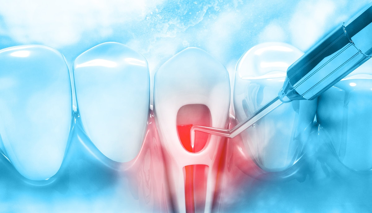 雷射治療-雷射植牙-雷射牙周病-雷射美白-台北牙醫推薦-悅庭牙醫