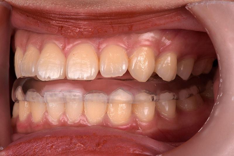 顳顎關節障礙治療-前置型咬合板-悅庭牙醫-台北