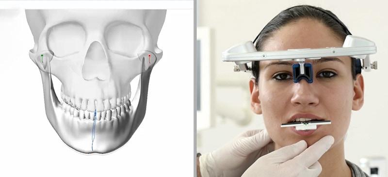 顳顎關節障礙治療-SICAT關節與下顎運動功能檢驗儀器-悅庭牙醫-台北