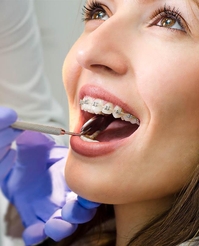 齒顎矯正科-牙齒矯正-隱形矯正-悅庭牙醫-台北牙醫推薦