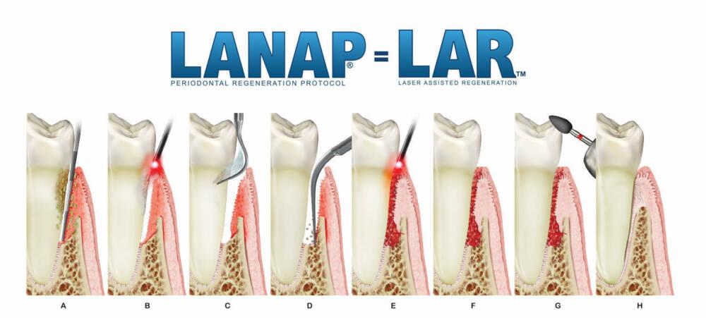 LANAP-雷射牙周病-治療步驟-悅庭牙醫-台北牙周病
