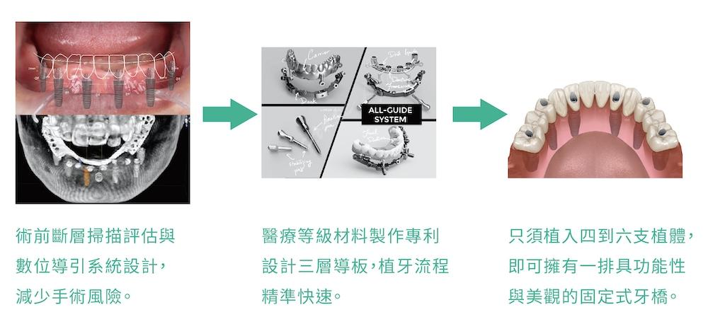 bio-all-x-全口重建-碧歐適植牙-固定全顎牙橋優點-悅庭牙醫-台北