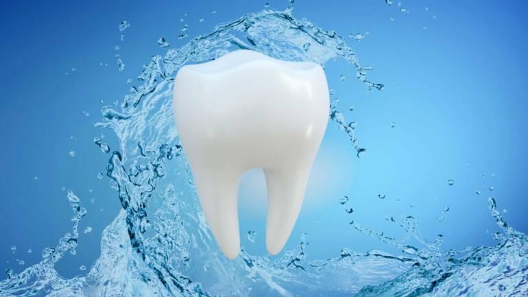 水雷射(Waterlase)-牙周病治療輔助設備