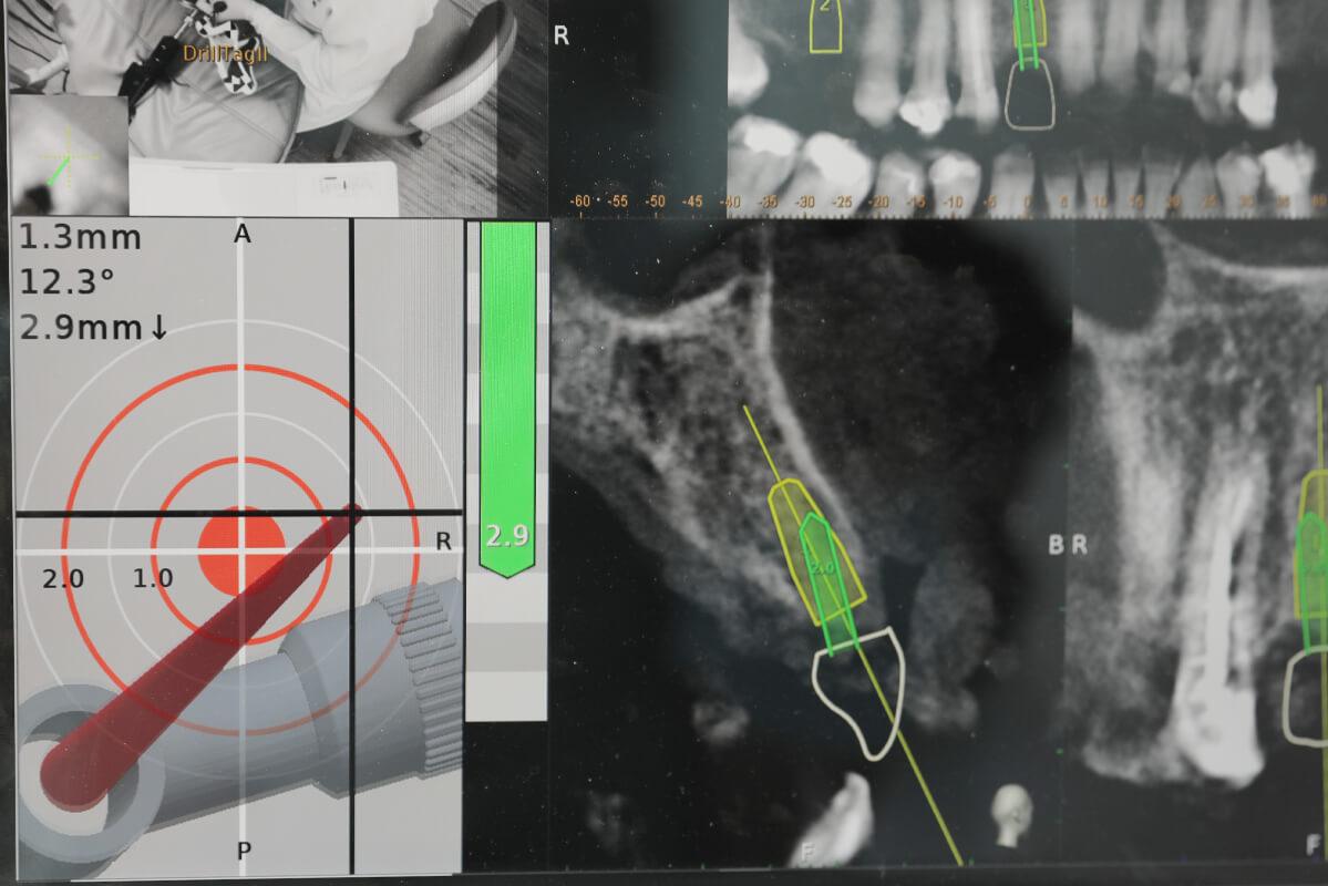 AR擴增實境4D導航植牙畫面示意圖