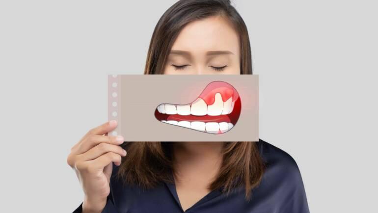 牙齦潰瘍流血「白色膿包」是口腔癌前兆?