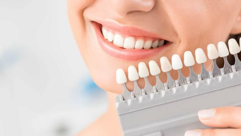 瓷牙貼片有用嗎?做貼片前須了解的7項重點